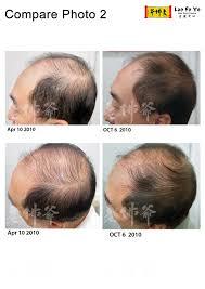 Natural Hair Growth Treatments Testimonial Laofoye Hair Care Blog