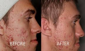 light treatment for skin acne treatment dr van aardt