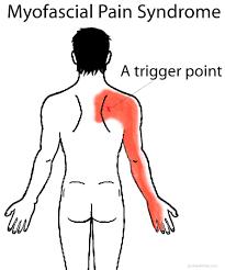 shoulder blade pain left right or under scapula ehealthstar