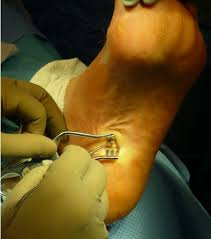 Planters Fasciitis Surgery by Harnessing The Potential Of The Instep Plantar Fasciotomy