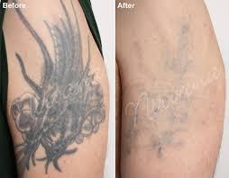 tattoo removal utah cost tattoo removal remove tattoos with tattoo vanish s all tattoo