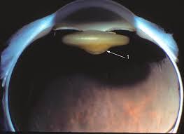 Map Dot Dystrophy Ocular Pathology Posterior Lenticonus