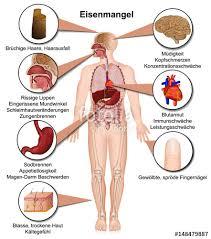 immunschwäche symptome eisenmangel symptome des menschlichen körpers infografik vektor