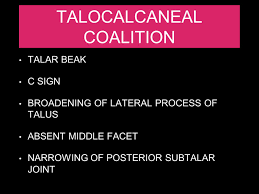 Talar Coalition Imaging In Tarsal Coalition Ppt Video Online Download
