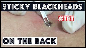 big blackheads on the back extracted the sticky ones a tbt