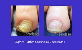 nail fungus before and after atlanta laser nail specialist