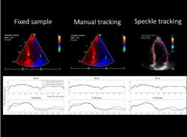 Characterization Of Myocardial Motion Patterns By Unsupervised