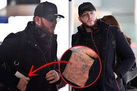james arthur shows off the results of his tattoo removal after