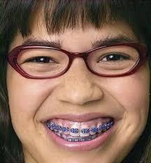 Braces Meme Girl - funny lady with braces smile pics bajiroo com