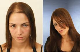 low level light therapy hair laser therapy the hair clinic birmingham