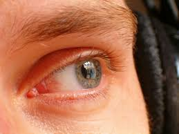 halloween contact lenses no prescription 4 reasons to give your contacts a break when you are sick my