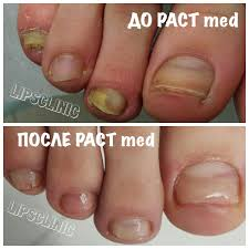 how efficient are the popular methods of nail fungus treatment