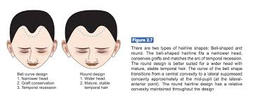 types of hair lines basic hairline shapes created for hair transplant lam sam