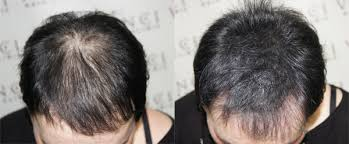 pics of scalp micropigmentation on people with long hair can scalp micropigmentation work with longer hair smp debate