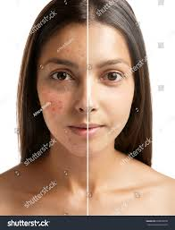 Face Mapping Acne Woman Face Before After Acne Treatment Stock Photo 603810878
