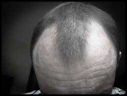 bandage hair shaped pattern baldness hair loss in men articles baldness cures causes of hair loss