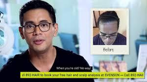 hair transplant in the philppines cost hair transplant at svenson philippines tonipet gaba testimonial