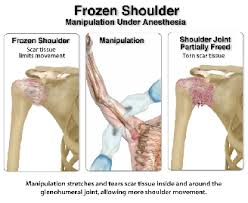 frozen joint syndrome complete spine pain care