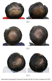 what gets rid of dht in body the 12 best natural dht blockers regrow your hair in 16 weeks