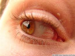 what does veins in the eye firmoo answers