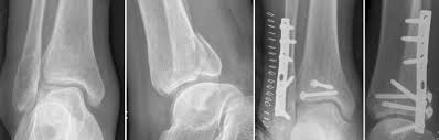 Fibular Avulsion Posterolateral Approach In Trimalleolar Ankle Fractures Surgical