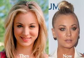 why did kaley christine cuoco sweeting cut her hair kaley cuoco plastic surgery before and after photos