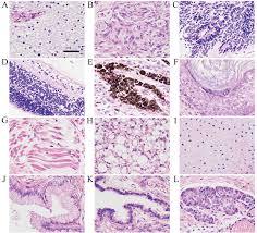 pilonidal cyst histology sacrococcygeal teratoma histology gallery tube