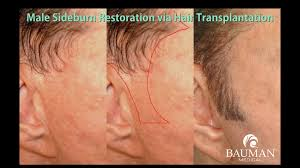 plastic surgery related hair loss bauman medical group
