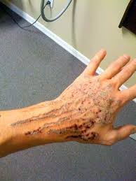 laser tattoo removal scars pictures wallpaper pictures