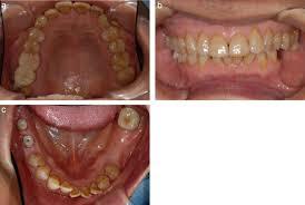titanium allergy testing allergic contact dermatitis caused by titanium screws and dental