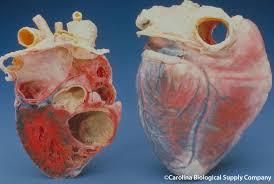 cell organ and tissue transplants ari info