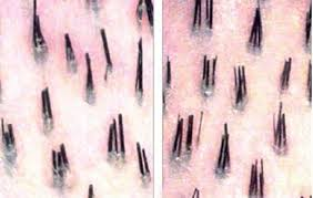 heavy pubic hair two hairs one follicle on scalp pubic area legs hair mag