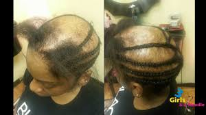 hair weave styles 2013 no edges alopecia sew in done by 3 girls and a needle youtube