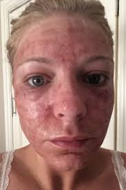 Red Flaky Skin Around Nose And Eyebrows Laser To Freshen My Skin Ruined My Life After Burning My
