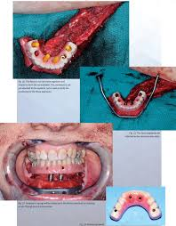 building a mandible by dr fayette c williams dentaltown