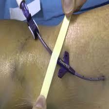 chambre implantable cip la impressionnant chambre implantable opacphantom