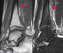 Ankle Ligament Tear Mri Rsna Press Release Radiologists Tackle Diagnosis Of Puzzling