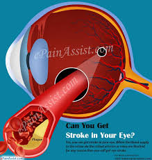 Can Stroke Cause Blindness Can You Get Stroke In Your Eye Causes Symptoms Treatment Of Eye