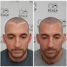 before and after scalp micropigmentation scalp guru
