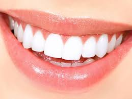 Teeth Whitening With Hydrogen Peroxide Teeth Whitening At Home A Master Class From Pinkycloud Womens