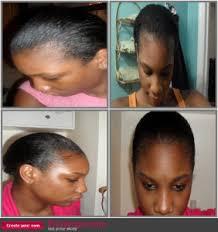 weak hair edges how to treat thin edges naturalhairfanatic