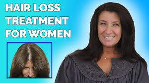 Women Hair Loss Treatment Hair Loss In Women U2022 Life Changing Treatment For Thinning Hair