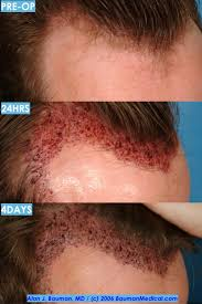 neograft recovery timeline hair transplant recovery post op issues bauman medical group