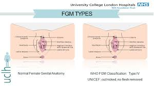 Female Meatus Anatomy Definition Of Fgm Comprises All Procedures Involving Partial Or
