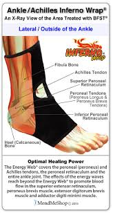 Lateral Collateral Ligament Ankle What U0027s The Difference Between A Tendon U0026 Ligament Injury