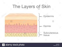 pilonidal cyst diagram epidermis diagram stock photos u0026 epidermis diagram stock images