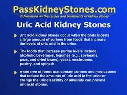 uric acid kidney stones youtube