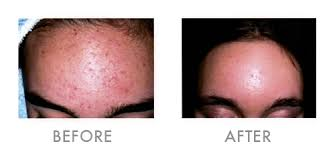 does infrared light therapy work treat acne home remedies pregnancy treatments essex does blue