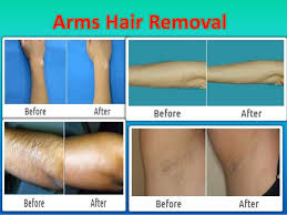 how much does laser hair removal cost on back cashgate scandal malawi importance of laser hair removal