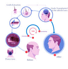 hair transplant calculator cost and treatment of fue hair transplant in visakhapatnam india